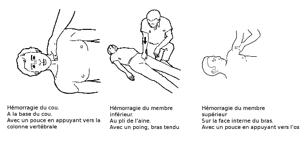 les points de compressions2